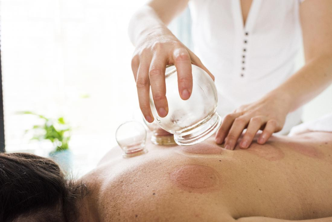 cupping-therapy-applied-to-back